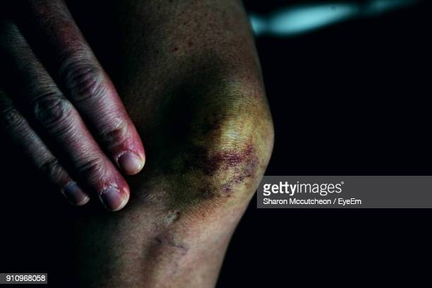 midsection of woman with physical injury - bruise stock pictures, royalty-free photos & images