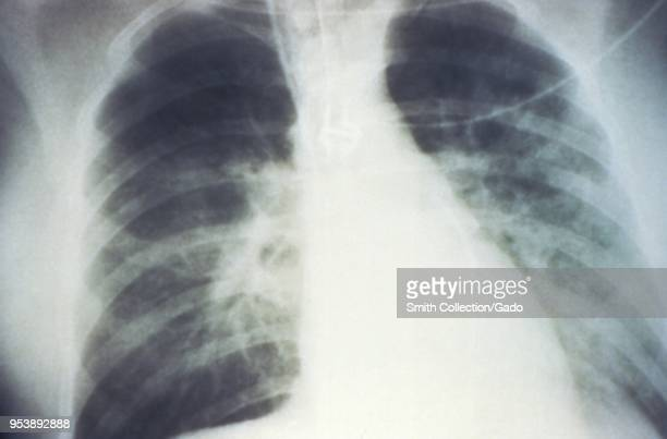 Midstaged bilateral pulmonary effusion due to Hantavirus pulmonary syndrome revealed in the AP chest xray 1994 Image courtesy Centers for Disease...