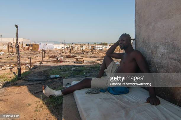A migrant living in the Rosarno ghetto rests in the shadow with a broken ankle trying to cool off from the heat on August 9 2017 in Reggio Calabria...