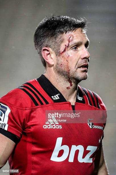 Mike Delany of the Crusaders leaves the field with blood on his face during the round 10 Super Rugby match between the Crusaders and the Sunwolves at...
