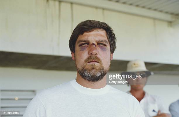Mike Gatting looks on after having to sit out the 1st Test match between West Indies and England at Sabina Park, Kingston, Jamaica, due to injury...