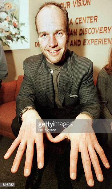 """Mike Skupin, a cast member on the second season of the hit television show """"Survivor"""" displays his hands to the press March 10, 2001 following a talk..."""
