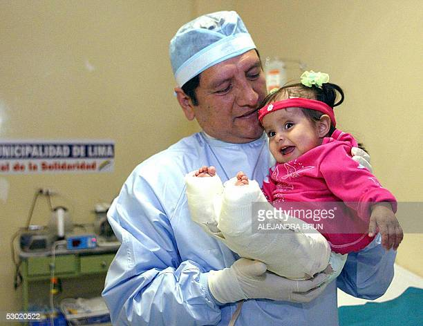 Milagros Cerron born with the rare mermaid syndrome smiles in the arms of Luis Rubio surgeon of the intensive care department of the Solidarity...