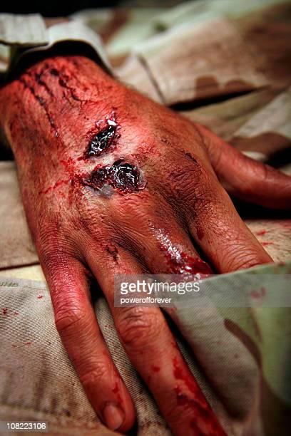 military man with burns and lesions - hand laceration stock photos and pictures