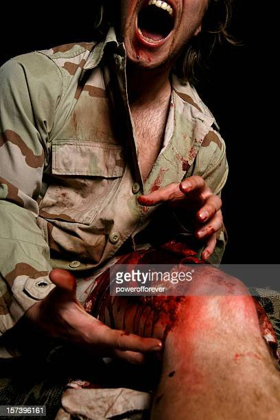 military man with filleted skin screaming in pain - bloody leg stock photos and pictures