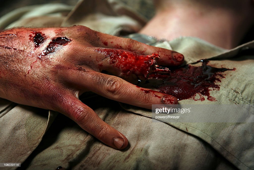 Military Man With Severed Finger : Stock Photo