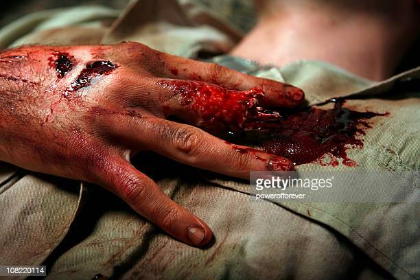 military man with severed finger - personal injury stock photos and pictures