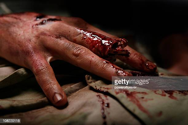 military man with severed finger - wounded stock photos and pictures