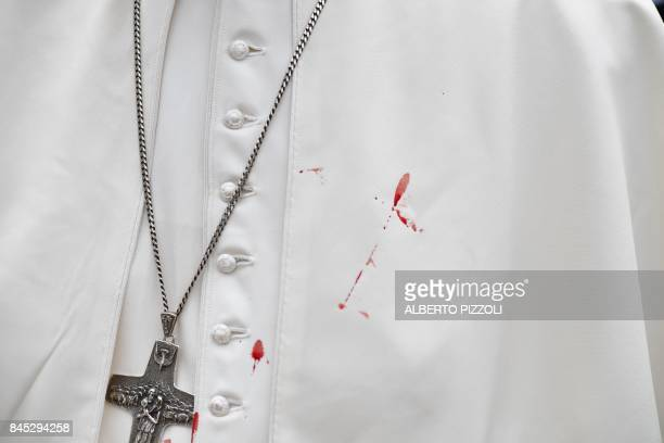 A few droplets of blood stain Pope Francis'white tunic from a bruise around his left eye and eyebrow caused by an accidental hit against the...