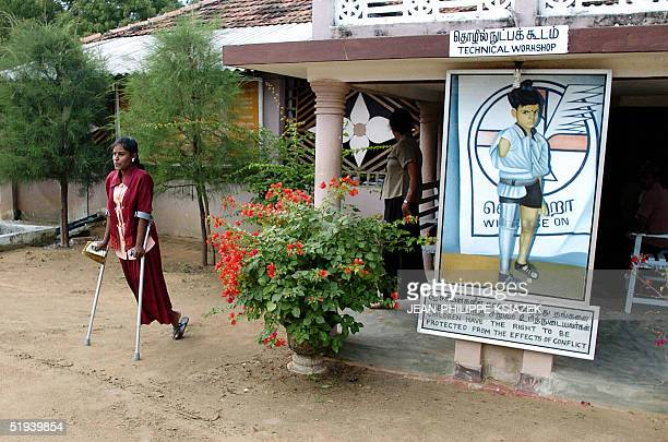 A mine victim leaves a prosthesis workshop after trying on some artificial limbs in Kilinochchi an area controlled by the Tamil Tigers in northern...