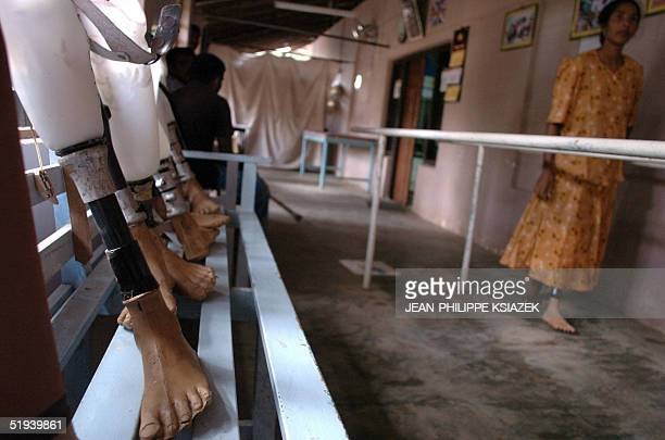 A mine victim woman tries on an artificial limb in Kilinochchi an area controlled by the Tamil Tigers in northern Sri Lanka 12 January 2005 The...
