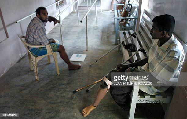 Mine victims chat as they wait to try prosthesis limbs in a workshop in Kilinochchi an area controlled by the Tamil Tigers in northern Sri Lanka 12...