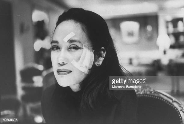 Minnie Osmena the exwife of Carnation heir Dwight Stuart w bandage on forehead cheek after sustaining a slashing from a broken champagne glass...