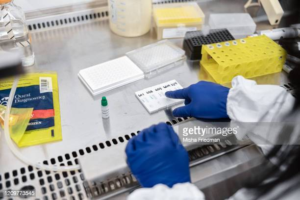 Mirimus Inc lab scientists work to validate rapid IgM/IgG antibody tests of COVID19 samples from recovered patients on April 10 2020 in the Brooklyn...