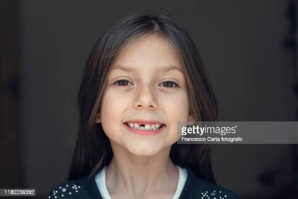 missing tooth - tempio pausania stock pictures, royalty-free photos & images