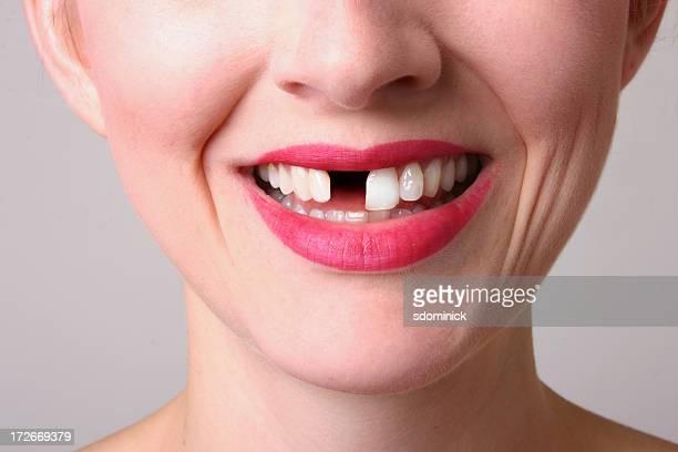 Fehlende Zahn