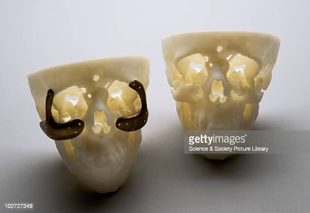 D model of a skull with treatment for the genetic disease Treacher Collins' syndrome London England 1999 A 3D model of a skull of a female patient...