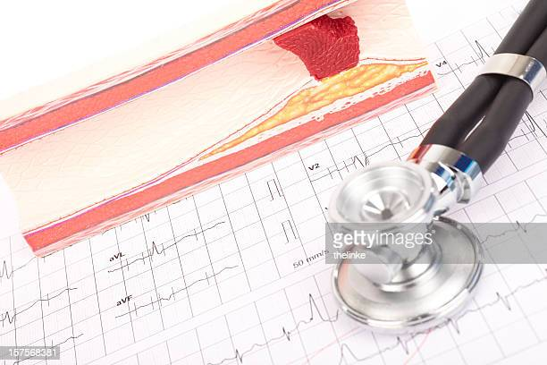Model of arteriosclerosis, ecg and stethoscope