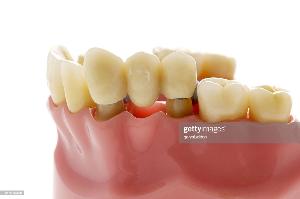 model of dental bridge used to replace missing tooth : Stock Photo