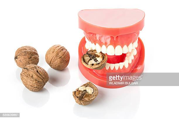 model of human jaw with walnuts - nuts models stock photos and pictures