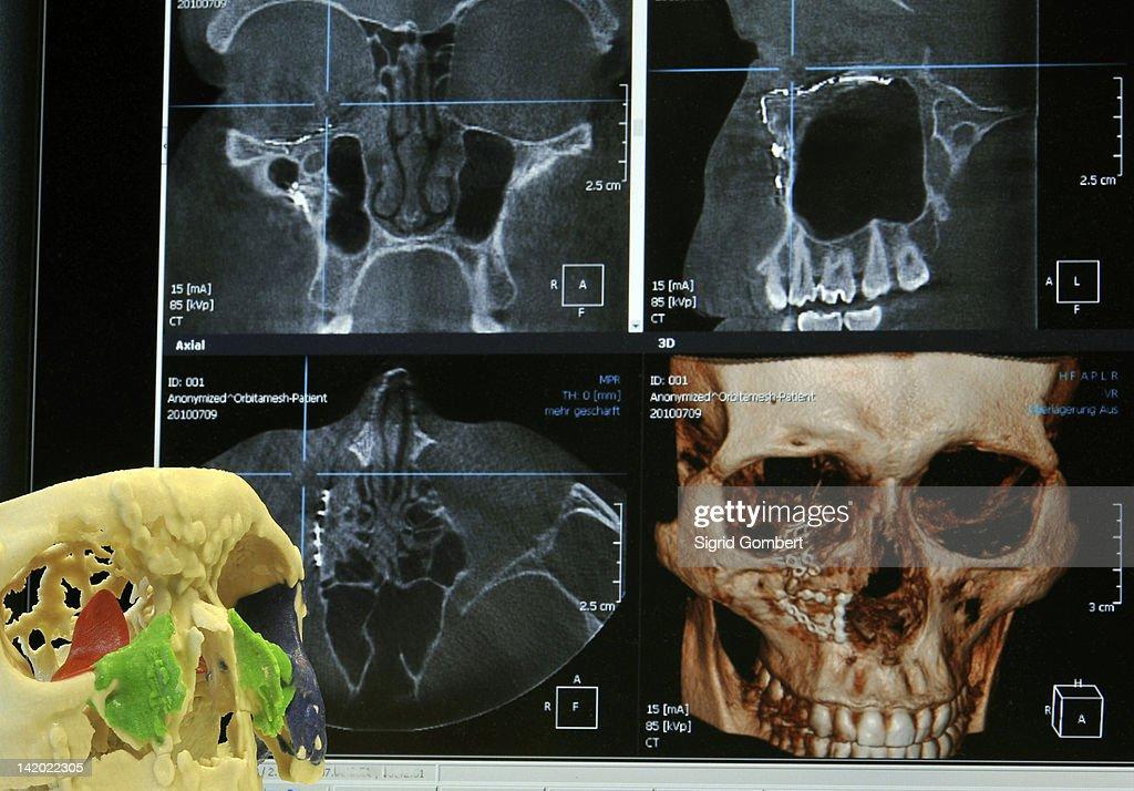 Modell des menschlichen Schädel in lab : Stock-Foto