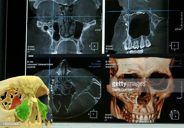 Model of human skull in lab