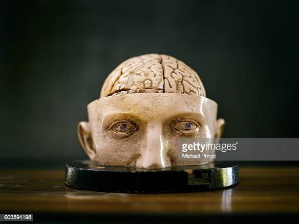 Model of Human Skull with Brain Exposed