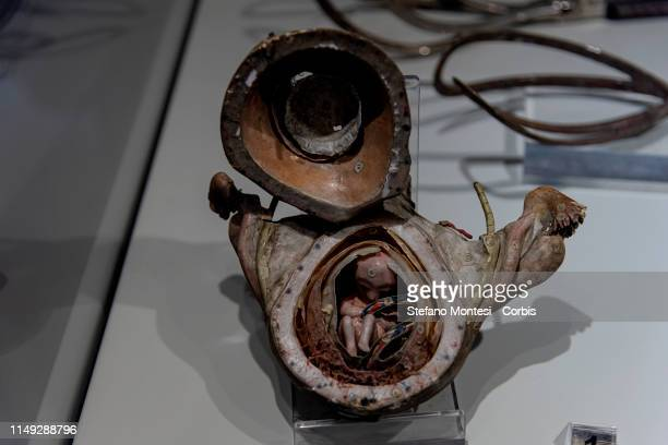 Model of pregnant uterus 19th century Pazzini Collection displayed during a press preview of the exhibition Il Ciclo della Vita at the National...