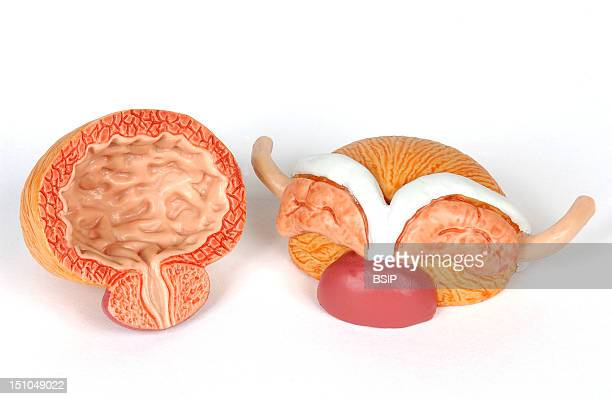 Model Of The Internal Anatomy Of The Genitourinary Tract Of An Adult Male Body Anterior Views Of The Surface And Of A Median Section On The Left Of...