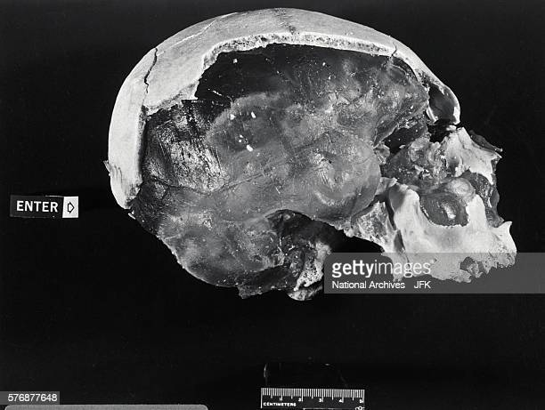 A model skull of John Fitzgerald Kennedy shows where a bullet entered his head This model was used in the ballistics tests of weaponry used in the...