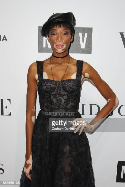Model Winnie Harlow arrives ahead of the NGV Gala at NGV International on August 26 2017 in Melbourne Australia