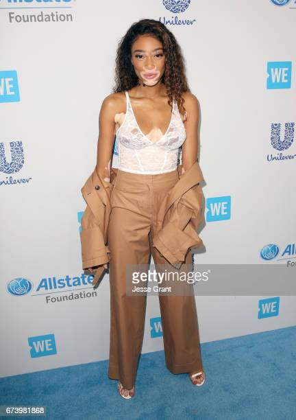 Model Winnie Harlow attends WE Day California to celebrate young people changing the world at The Forum on April 27 2017 in Inglewood California