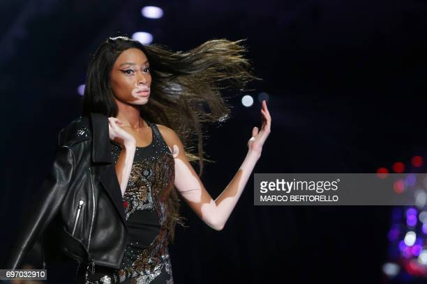 Model Winnie Harlow presents a creations for fashion house Philippe Plein during the Men's Spring/Summer 2018 fashion shows in Milan on June 17 2017...