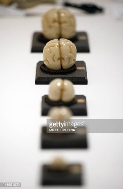 Models on display demonstrate the differents stages of human fetal brain development produced by the modelmaking studio of Adolf Ziegler during a...