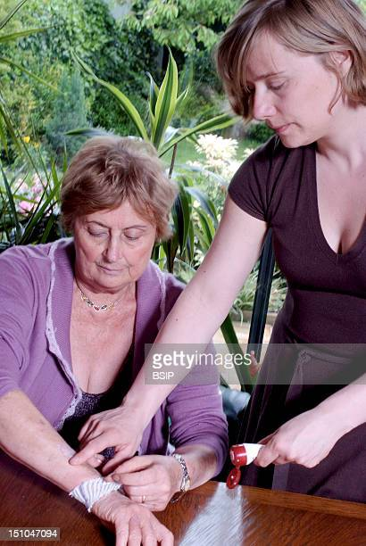 Models Spontaneous Bruising On The Arm Of An Elderly Woman Care With The Cream Dexeryl