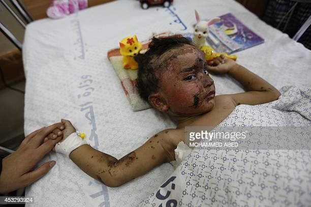Mohammed Ali Wahdan a twoyearold Palestnian boy wounded in the latest Israeli assault on the Gaza Strip lies on his hospital bed as he receives...