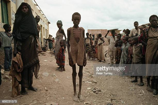 Mohammed is one of many victims of the famine resulting from Somalia's civil war In the 1980s warlord factions joined together to overthrow then...