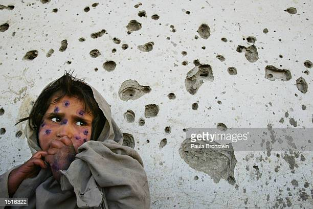 Mohboba, 7-years-old, stands against a bullet-ridden wall as she waits to be seen at a health clinic March 1, 2002 in Kabul, Afghanistan. Mohboba has...