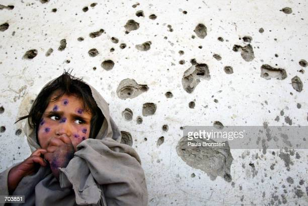 Mohboba stands against a bulletridden wall waiting to be seen at a health clinic March 1 2002 in Kabul Afghanistan Mohboba has ointment applied her a...