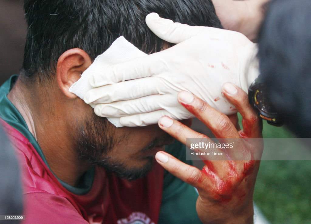 Mohun Bagan player Syed Rahim Nabi was injured after one of the bricks thrown from the stands hit him on his face during I-League Match between Mohun Bagan and East Bengal on December 9, 2012 in Kolkata, India. The casualties included 40 spectators and 20 policemen who were injured in the scuffle, police sources said.