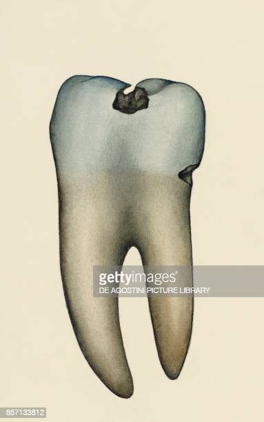 Molar affected by tooth decay human body drawing