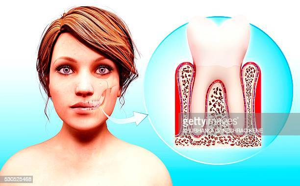 molar tooth, computer artwork. - molar stock pictures, royalty-free photos & images