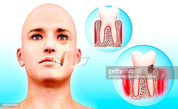molar tooth, computer artwork. - rotten teeth stock photos and pictures