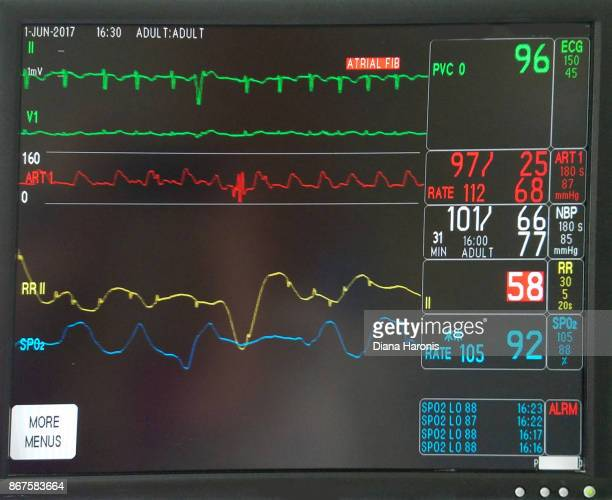 a monitor at a hospital designed to measure heartbeat and blood pressure. - ecg stock photos and pictures