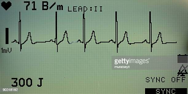 monitor of ecg - cardiac conduction system stock pictures, royalty-free photos & images