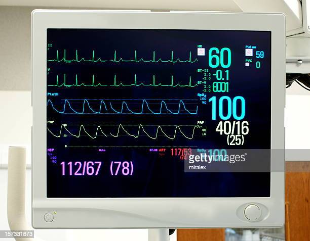 Monitor with Vital Signs: EKG, Pulse Oximetry, Blood Pressure