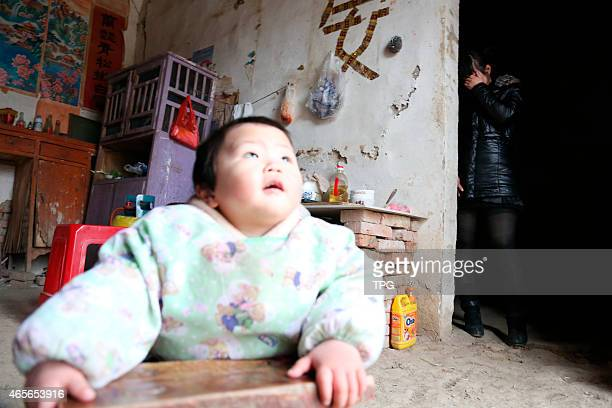 15 months old baby Weixiang Chu suffered from thalassemia on 09 March 2015 in Huaiyuan Anhui China