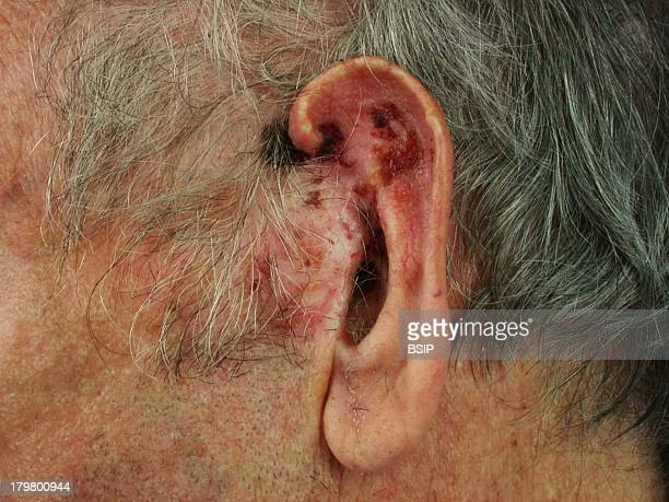 Morpheaform Basal Cell Carcinoma Extensive sclerodermiform basal cell carcinoma on the ear