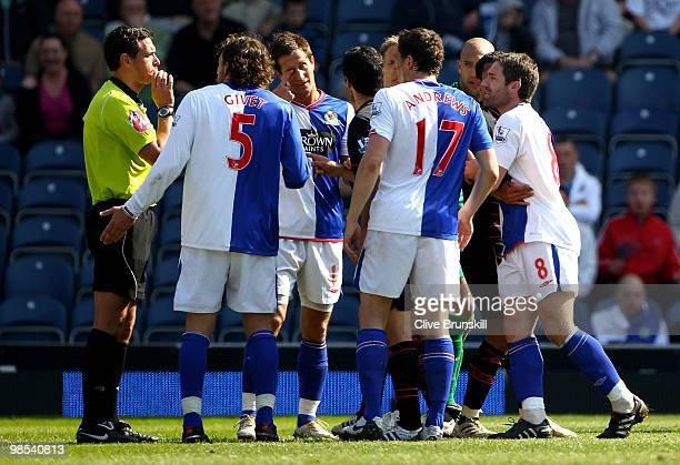 Morten Gamst Pedersen of Blackburn Rovers touches his eye after being poked in it by Mikel Arteta of Everton during the Barclays Premier League match...