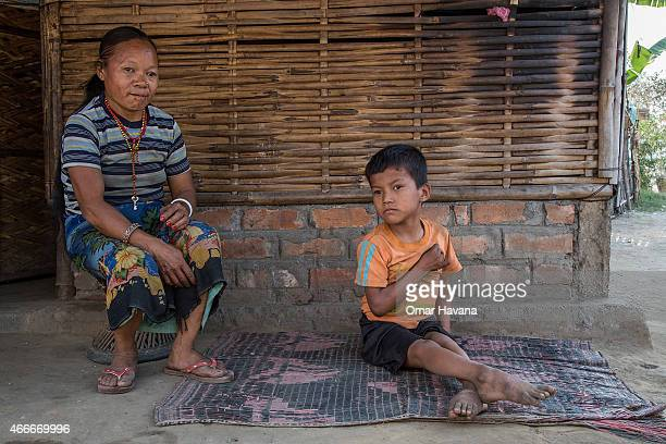 A mother and her son sit outside their home inside the 16 huts where mentally disabled people are treated as part of a program organised by the...
